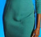 michelle-obama-bulge